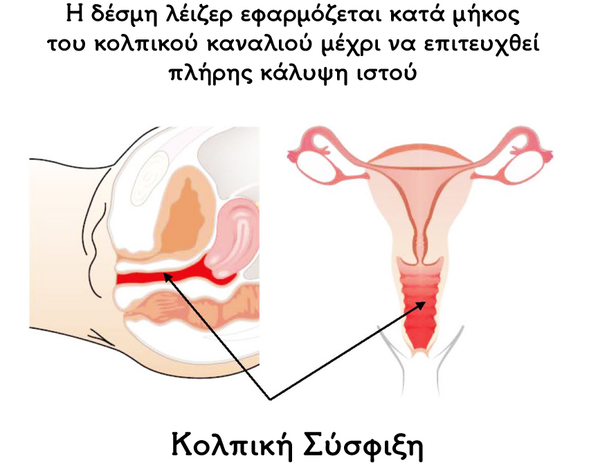 vaginal tightening t